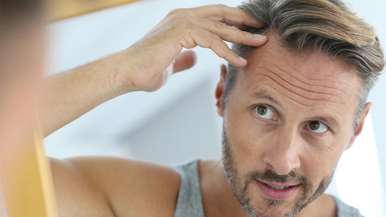 Jak Ukryć Zakola Odpowiednią Męską Fryzurą Na Co Dzień